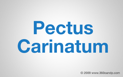Pectus Carinatum Frequently Asked Questions