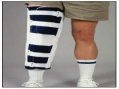 Deluxe Knee Immobilizer