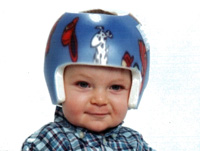 Boston Band for Plagiocephaly (Product View)