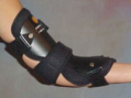 Ventral Cubital Tunnel Splint (Product View)