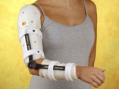 Elbow Orthosis W/R.O.M. Hinge (Prduct View)