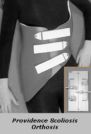 Providence Scoliosis Orthosis